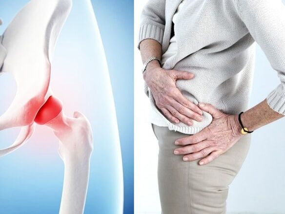 symptoms of osteoarthritis of the hip joint